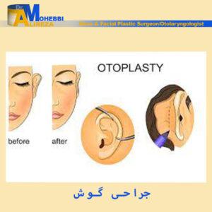 جراحی گوش